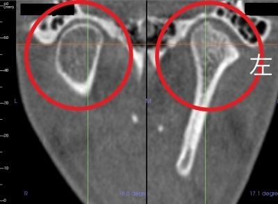 歯医者のマウスピースと顎関節の変形のCT画像,広島市,西区,草津新町,アルパーク歯科・矯正・栄養クリニック