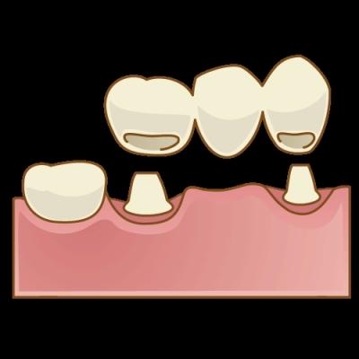根管治療 リーマーの突き抜け,選択肢としてのブリッジの画像,広島市西区草津新町,アルパーク歯科・矯正・栄養クリニック