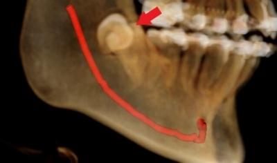 高校生の小さい親知らずの抜歯,親知らずと下顎神経のCT画像,広島市,西区,草津新町,アルパーク歯科・矯正・栄養クリニック