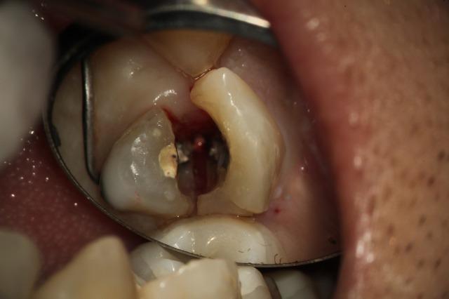 完全にひび割れた歯の画像,変色の写真,広島市,西区,草津新町,アルパーク歯科・矯正・栄養クリニック