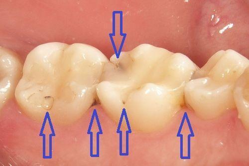 前歯と奥歯のコンポジットレジン。やり直した方がよい時の画像,広島市,西区,草津新町,アルパーク歯科・矯正・栄養クリニック