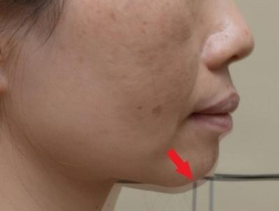 歯医者のマウスピースと顔面の変形が改善した写真,広島市,西区,草津新町,アルパーク歯科・矯正・栄養クリニック