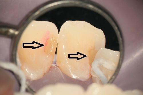 前歯と奥歯のコンポジットレジン。やり直した方がよい時 変色の写真,広島市,西区,草津新町,アルパーク歯科・矯正・栄養クリニック