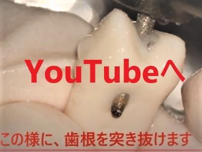根管治療 リーマーの突き抜け,YouTubeへのリンク画像,広島市西区草津新町,アルパーク歯科・矯正・栄養クリニック